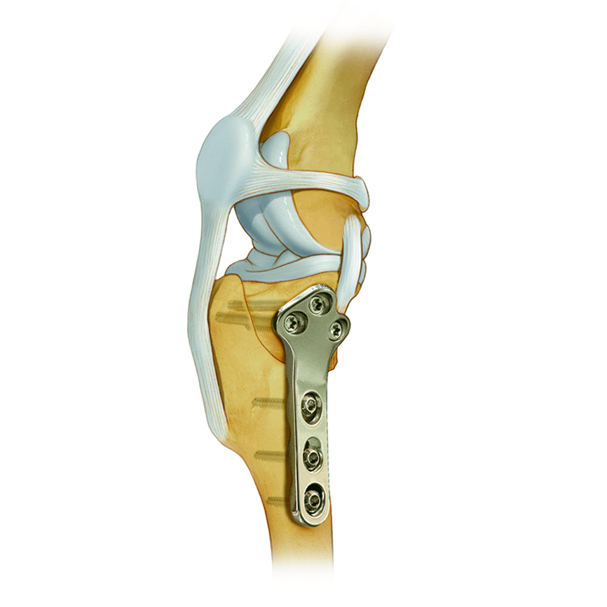 TIBIAL PLATEAU LEVELING OSTEOTOMY TPLO SYSTEM